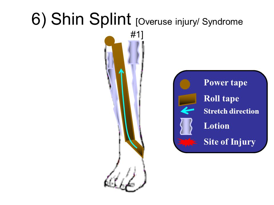6) Shin Splint [Overuse injury/ Syndrome #1]